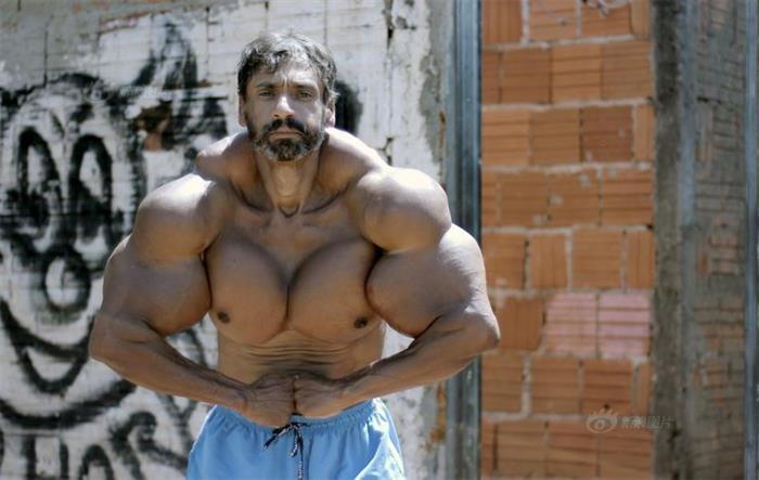 巴西男子为健身疯狂注射燃油 手臂60cm粗